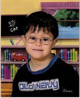 Comment adopter un enfant avec le syndrome de Down